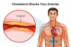 Mediterranean Diet can reduce your blood cholesteroL